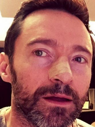 Hugh Jackman operado de la nariz, el cáncer golpea de nuevo