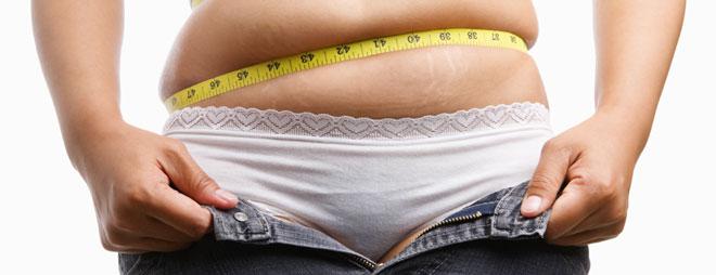 Obesidad primaria