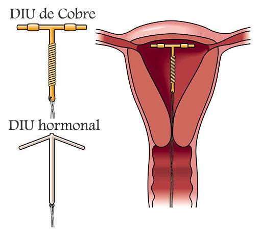 DIU de cobre o DIU hormonal