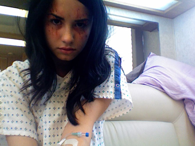 Demi Lovato magullada, cara de loca y con una sonda de suero pinchada a su abrazo en Anatomía de Grey