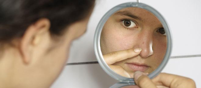 Trucos caseros para acabar con el acné en los adolescentes