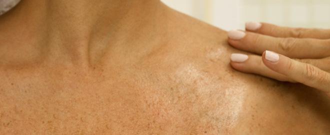 Como evitar manchas en la piel