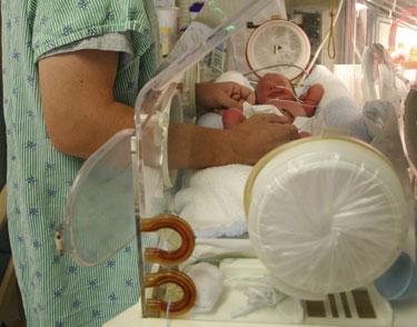 Un bebé prematuro