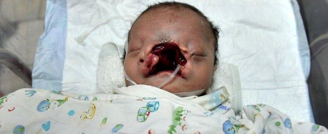 Abandonado por su madre un bebé chino que ha nacido con labio leporino severo