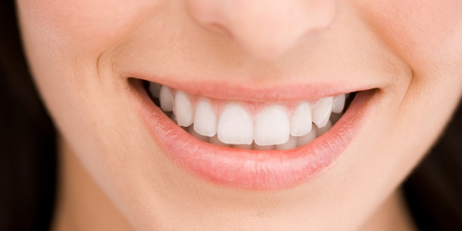 Los implantes, la mejor alternativa para la pérdida de una pieza dental