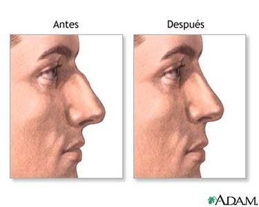 Resuelve todas tus dudas sobre la rinoplastia, la operación de cirugía facial más demandada