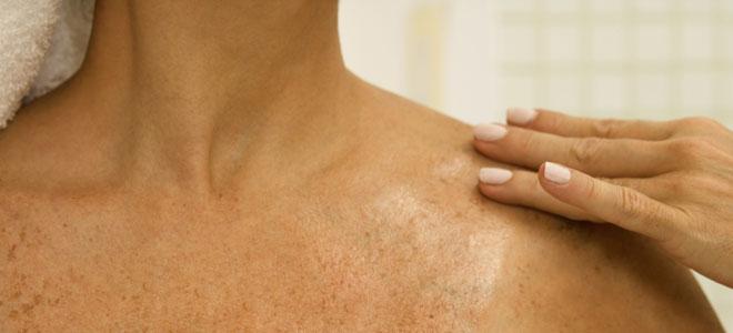 Las manchas de pigmento por todo el cuerpo al niño