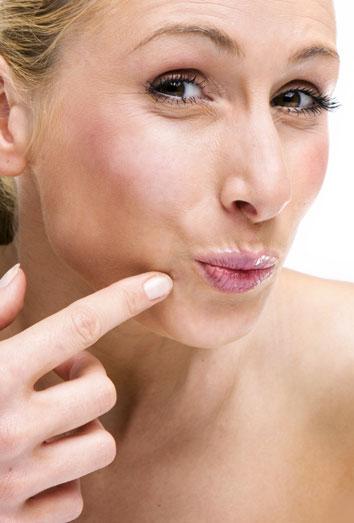 Remedios contra los antiestéticos granitos