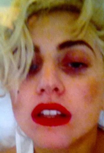 Lady Gaga. Los accidentes más absurdos sobre el escenario