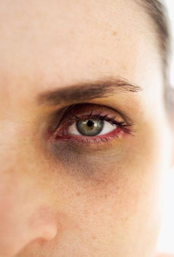 Soy una mujer maltratada, verdadero o falso. Violencia doméstica. Toni Cantó, Rihanna, Oscar Pistorius