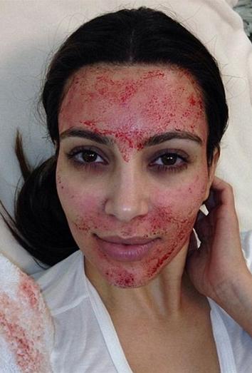 El tratamiento de belleza mas radical de Kim Kardashian, mascarillas de sangre