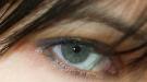 Una exploración ocular, útil para detectar precozmente el alzheimer