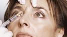 Botox: ¿Cuánto dura y cuál es el efecto de la inyección?