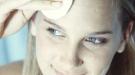 Cómo prevenir las cicatrices del acné