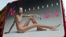 Fallece Isabelle Caro, la modelo anoréxica que protagonizó la impactante campaña de Toscani