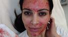 El cuidado facial más radical de Kim Kardashian: mascarilla de sangre