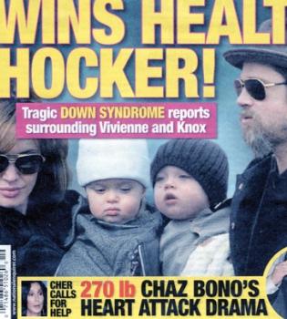 Los gemelos de Angelina Jolie y Brad Pitt podrían padecer Síndrome de Down