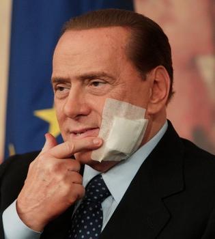 Reaparece Silvio Berlusconi tras su operación de mandíbula
