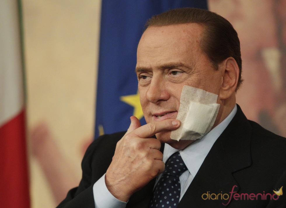Silvio Berlusconi tras su operación de mandíbula