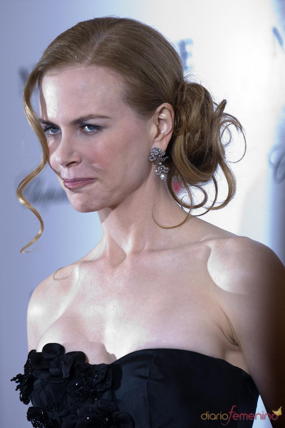Los excesos de la cirugía pasan factura a Nicole Kidman