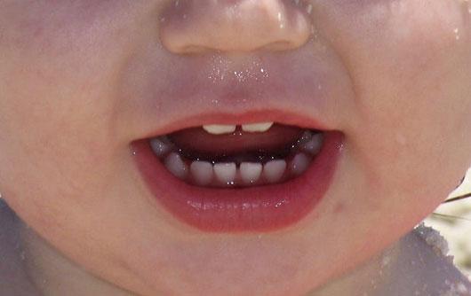 Cuándo les salen dientes a los bebés? | La mejor imagen de cuando salen dientes bebe