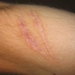 Cicatrices