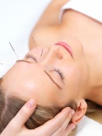 Cómo aliviar el estrés con acupuntura: ¿qué beneficios tienen las agujas?