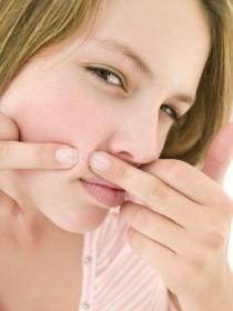 Remedios caseros para las espinillas: cómo eliminar el acné de forma natural