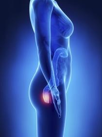 Qué son las hemorroides o almorranas: causas, síntomas y tratamientos