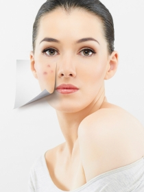 Cómo combatir el acné: causas, tipos y tratamientos para los granos