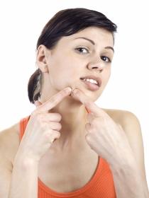 Tipos de acné: soluciones para diferentes granos y espinillas