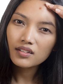Qué es el acné vulgar o vulgaris: causas y tratamiento