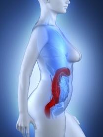 Qué son las hemorroides trombosadas: causas y tratamientos