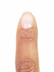 Por qué salen ondas en las uñas