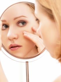 ¿Alergias en la piel? Arcilla y más tratamientos increíbles