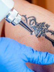 Razones por las que deberías quitarte un tatuaje
