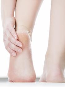 Grietas en los pies: remedios caseros para combatirlas