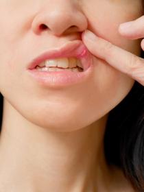 Llagas en la lengua: remedios caseros para curarlas