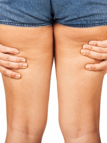 6 trucos para evitar el roce de los muslos