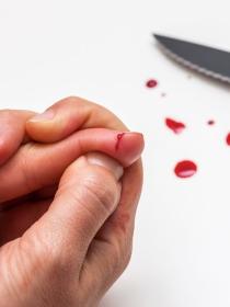 Soñar con cortarse un dedo: atenta a tu autoestima