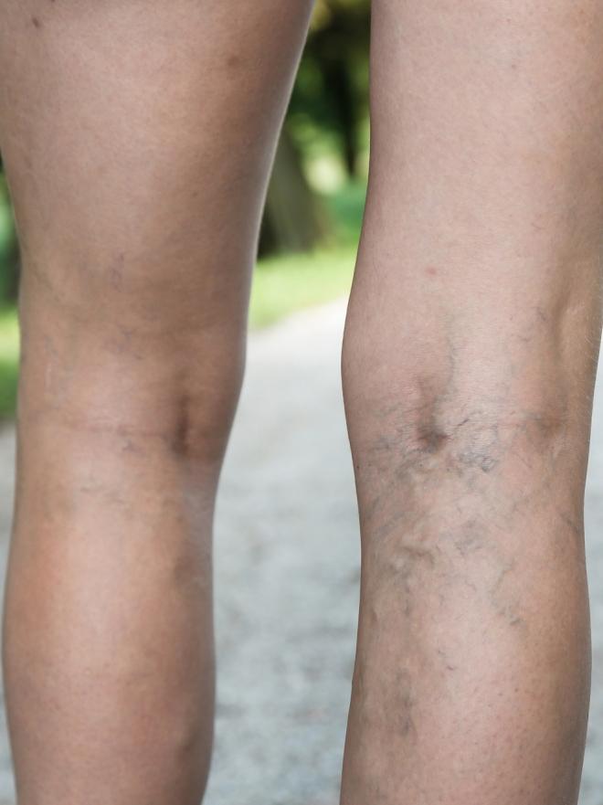 Tengo Varices Puedo Hacerme Un Tatuaje Sobre Ellas