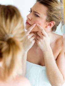 Mascarilla de bicarbonato de sodio para tratar tu acné, ¡funciona!
