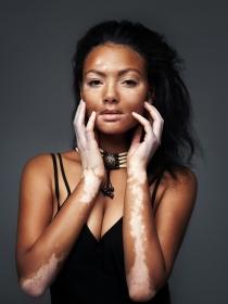 Tengo vitiligo, ¿puedo hacerme un tatuaje para tapar las manchas?