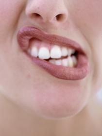 Bruxismo: rechinar los dientes inconscientemente