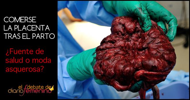 Comerse la placenta: ¿fuente de salud o moda asquerosa?