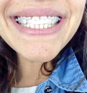 Sonia Walls se pone aparato: la sonrisa más bonita de GH
