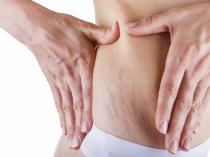 Más difícil es prevenir y eliminar las odiosas estrías de la piel