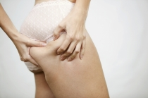 Celulitis, una anomalía de la piel que nada tiene que ver con la obesidad o la delgadez