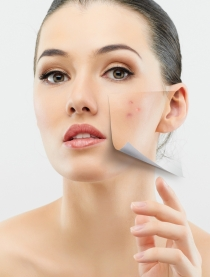 El acné no es sólo un problema en la piel de adolescentes