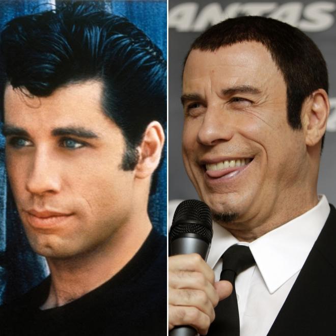 Famosos que envejecieron fatal: John Travolta